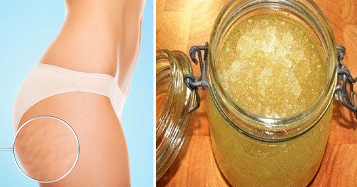The Most Effective Homemade Peeling Cream Against Stretch Marks And Cellulite Healthy Natural